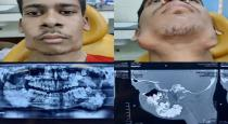Bihar teenager with rare tumour has 82 teeth removed from his jaw
