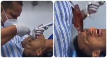 Doctors Pull Out 7-Inch Fish From A Mans Throat