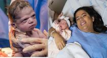 angy-born-baby-photo-viral-in-worldlevel