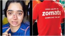 Zamato boy breaks women nose viral video