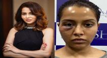 skin-doctor-explain-for-actress-raiza-complaintp